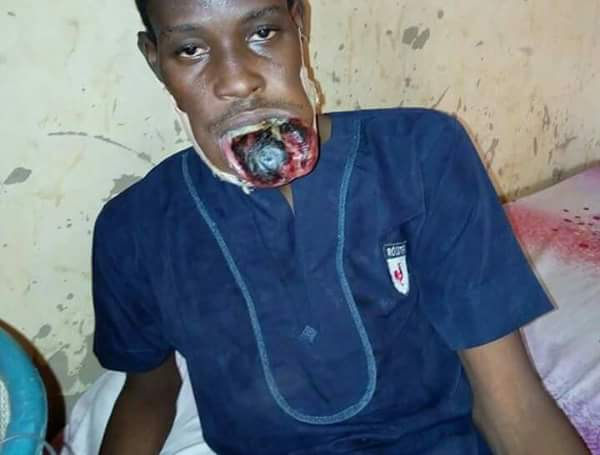 , Man hit by severe form of mouth cancer in North (Disturbing Photos), Effiezy - Top Nigerian News & Entertainment Website