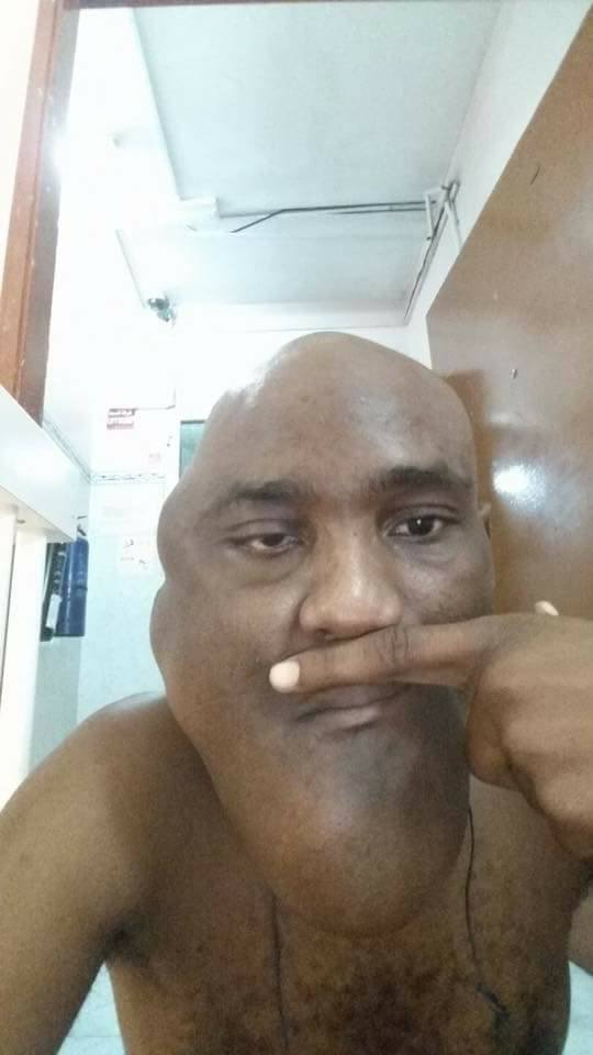 , After surgery photos of Man who blasted Enugu governor for not helping him, Effiezy - Top Nigerian News & Entertainment Website