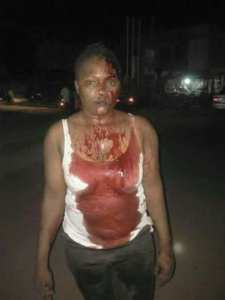Police DPO Personally Tortured An Innocent Nigerian Lady (Photos)