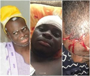 Popular Instagram Comedian, Ogbeni Adan Stabbed By Hoodlums (PHOTOS