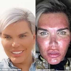 Human Ken Doll who's had over 60 plastic surgeries, wants to remove his ribs in new surgery (Photos)