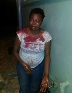 Top Govt. Official On The Run After Brutally Battering His Wife – (Photos)