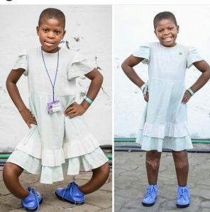 11-year-old girl with extreme bow legs undergoes successful surgery (Photos)