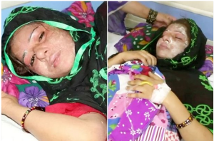 Husband Pours Acid On 25-Year Old Wife For Giving Birth To A Baby Girl And Not A Boy (Photos)
