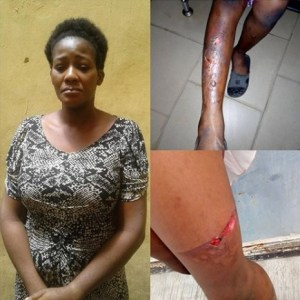WICKEDNESS! Madam Tortures Her 10-year-Old Maid With Hot Pressing Iron (Photos)