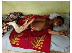 Boy Dies While Burning Refuse With Petrol, Brother Critically Injured (Graphic)