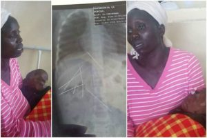 Doctors Find 7 Sewing Needles Inside The Body Of A 3-Year-Old Child (Photos)