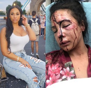 NFL Player LeSan McCoy Accused Of Assaulting His Girlfriend, Child And Dog. (Photos)