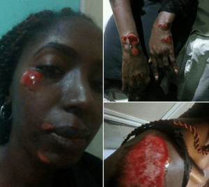 Lady Narrates How She Jumped Out Of A Moving Car To Escape Suspected Ritualists (Photo)