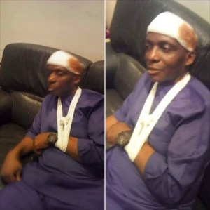 Senator Gershom Bassey Attacked At Transcorp Hotel In Calabar By Angry Youths (Photos)