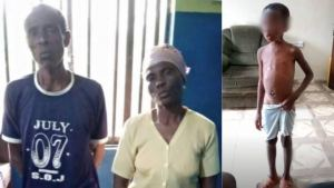 Couple allegedly burn 7-year-old granddaughter with hot robber, accuse her of witchcraft