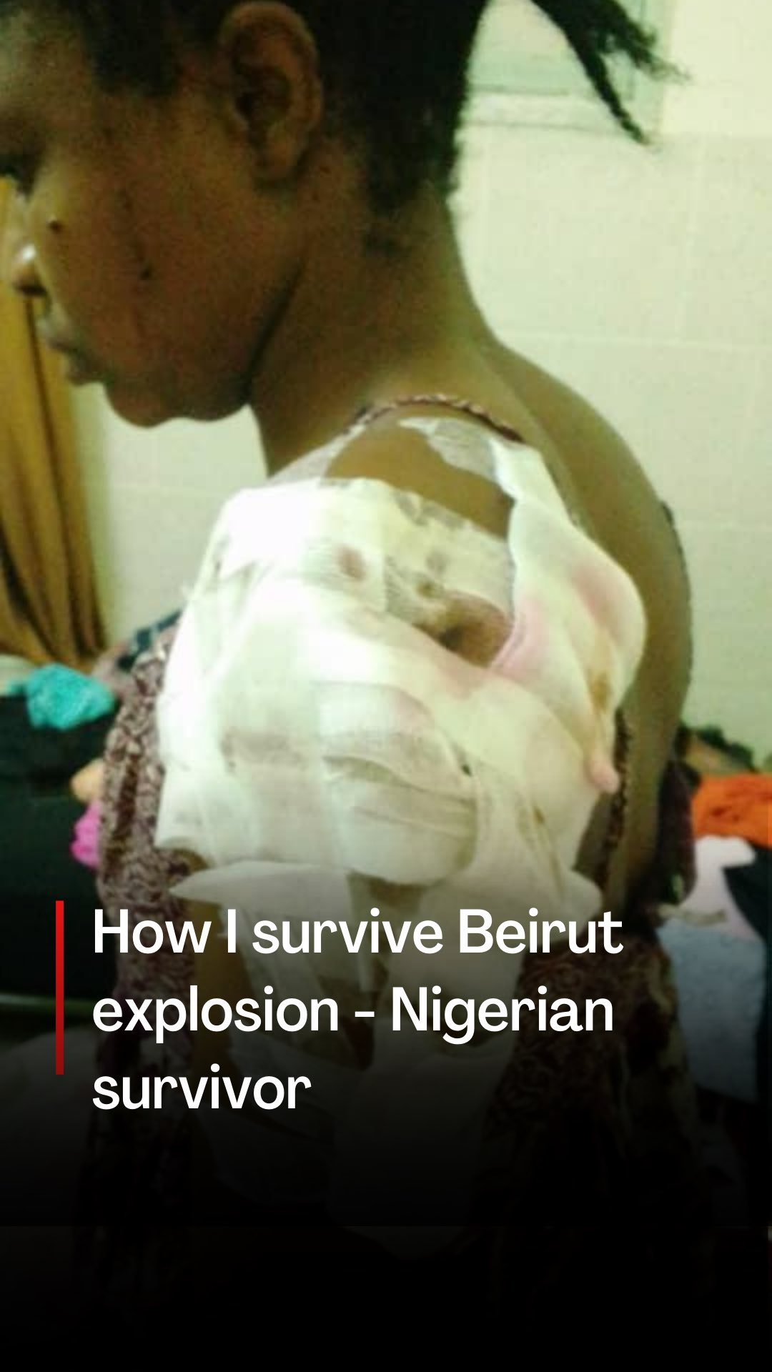 , Severely Injured Nigerian Who Survived Beirut Explosion Begs For Help To Return Home, Effiezy - Top Nigerian News & Entertainment Website