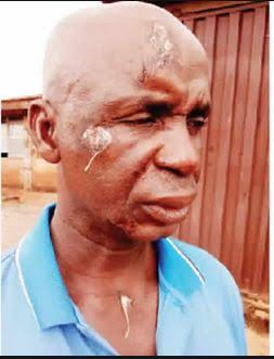 Brutalised 54-year-old driver narrates how policeman on check point dealt with him for no reason