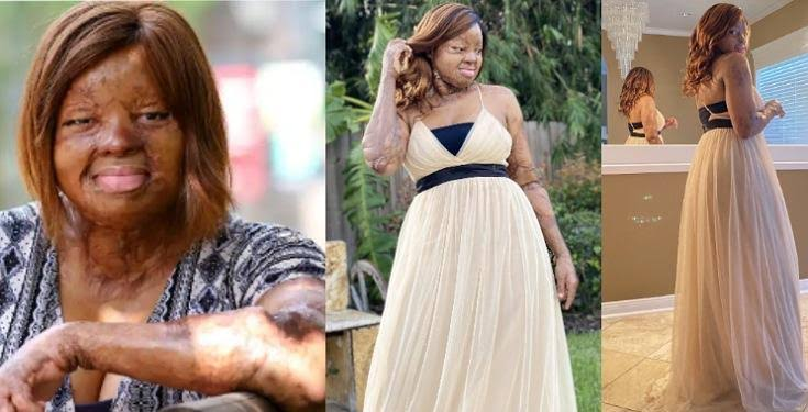 Sosoliso Plane Crash Survivor, Kechi Okwuchi celebrates as she turns 31 (photo)