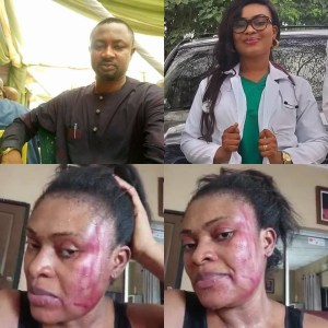 A Medical Doctor calls out her husband for beating her + UPDATE (Video)