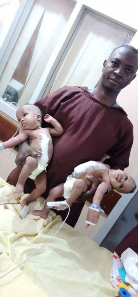 , Conjoined female twins separated at the University of Ilorin Teaching Hospital (Photos), Effiezy - Top Nigerian News & Entertainment Website
