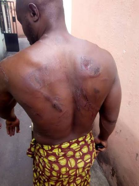 , 'I was beaten with cutlass, shovels,' man recounts experience with OSPAC vigilance group in Rivers (photo), Effiezy - Top Nigerian News & Entertainment Website