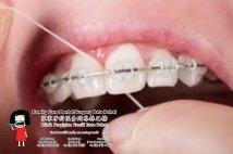Family Care Dental Surgery Batu Pahat Johor Malaysia Batu Pahat Dentist Oral Health Children Dentistry Dental Clinic Dental Implant Dentures Wisdom Tooth Surgery Extractions A02-04