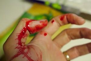 accident, bleed, bleeding