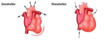 mit kell inni magas vérnyomás válságával)