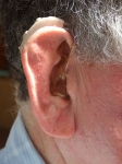 Three Reasons Untreated Hearing Loss Can Cause Falls
