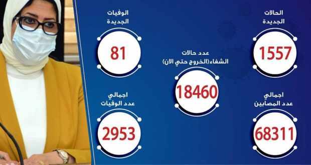 حالات فيروس كورونا في مصر اليوم 30-6-2020