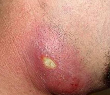 ingrown hair cyst pictures removal treatment causes symptom