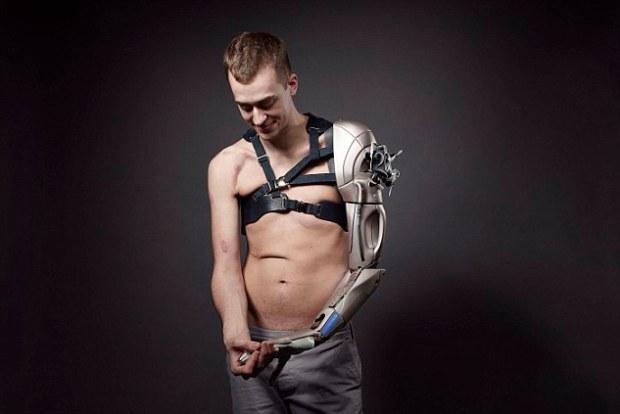 brațul bionic (4)