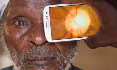 tratament pentru glaucom