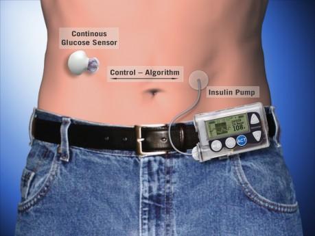 Senzorul de glicemie transmite informațiile spre pompa de insulină.