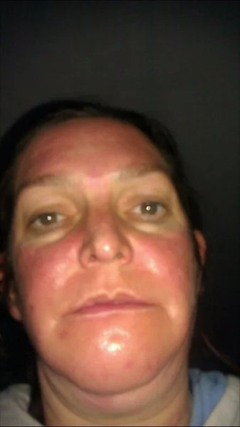 Allergic Reaction - California - Jessner Peel review - RealSelf
