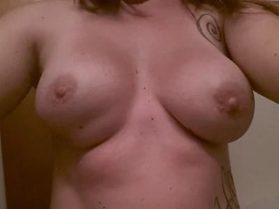 severe tuberous breast