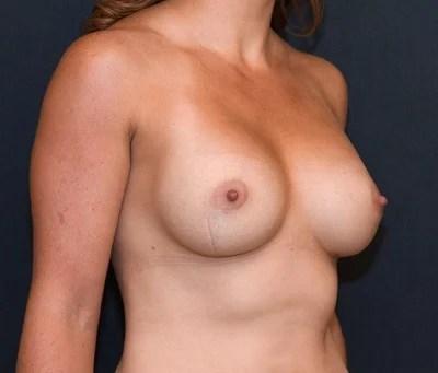 double e cup boobs