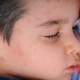 【麻疹(はしか)】ワクチンは1回だけの接種では効果がない! その理由とは