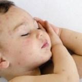 【水疱瘡】全身の発疹が特徴の子供の病気、症状と治療法、帯状疱疹のリスクも