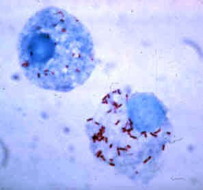 Tick hemolymph cells infected with Rickettsia rickettsii
