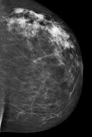 mammografi-med svulster