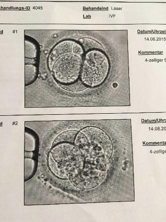 ICSI Embryotransfer künstliche Befruchtung