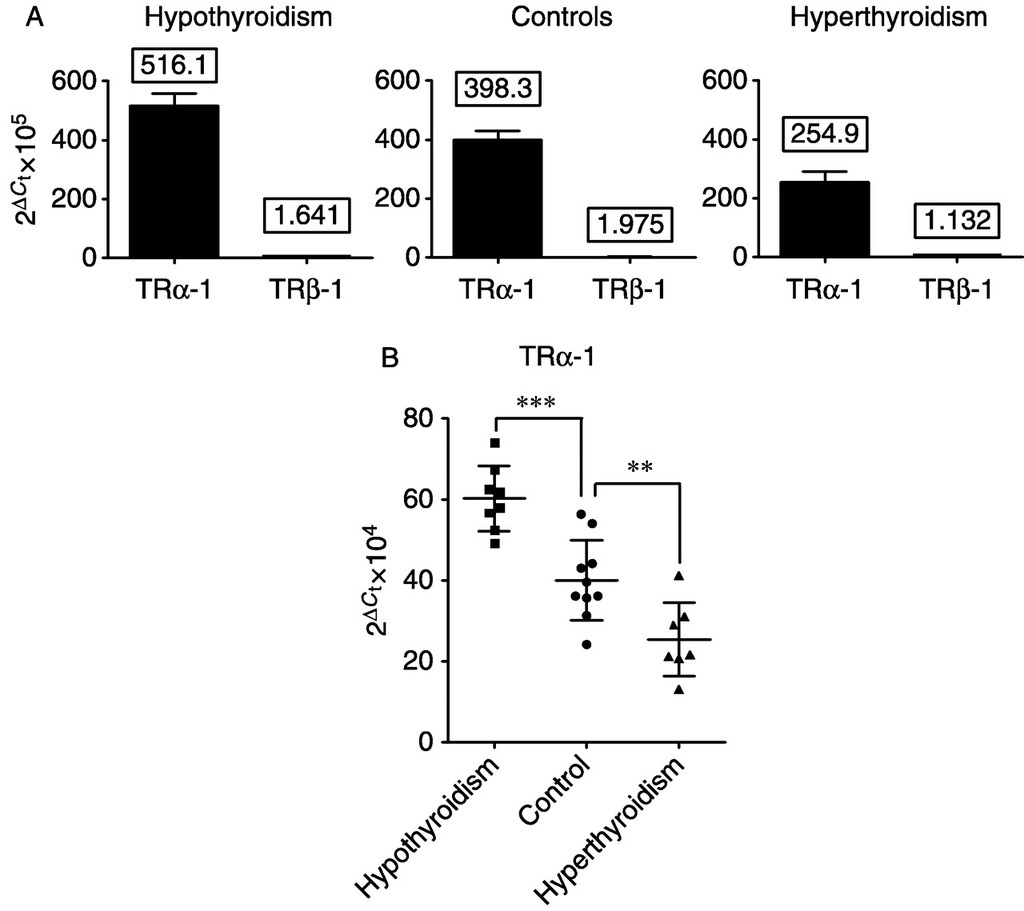 Clinical Relevance Of Thyroid Dysfunction In Human Haematopoiesis Biochemical And Molecular