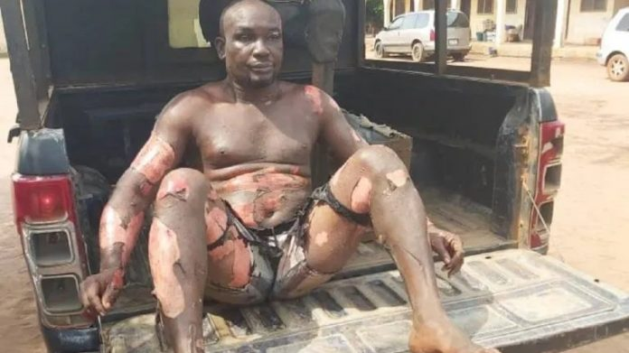 Photos of a Man who Sets Himself On Fire , Stabs his Mother ( See Details )