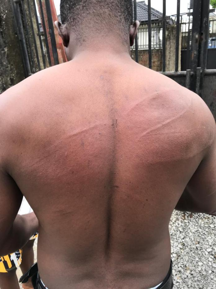 YEM Africa Condemns the Brutalization of Akpokona Omafuaire By the Nigerian Police Force in Delta