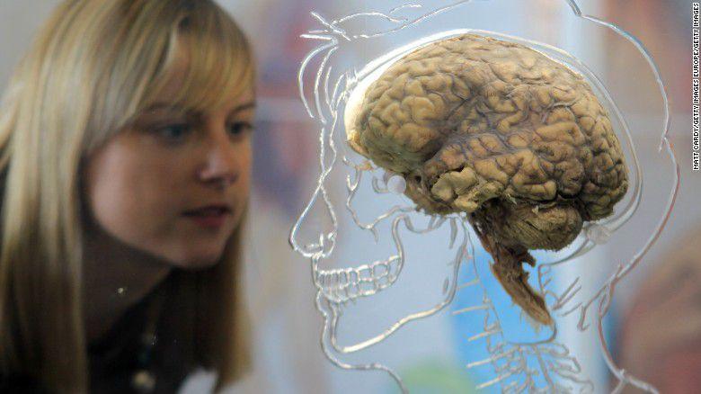 real-human-brain-getty-exlarge-169