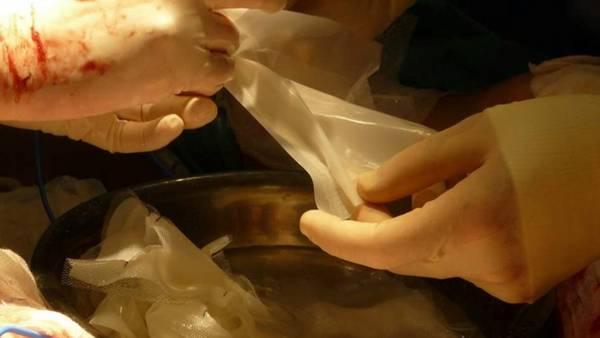 Trasplante de piel. Con células propias del paciente, generan piel para trasplantar en grandes areas.