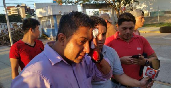 Franklin Cisterna, de Unitel, uno de los periodistas que sufrió lesiones en la cabeza por una pedrada