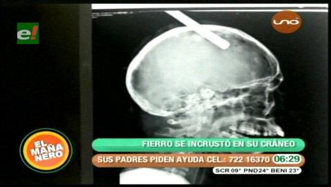 Cochabamba: Menor vive tras incrustarse un fierro en la cabeza