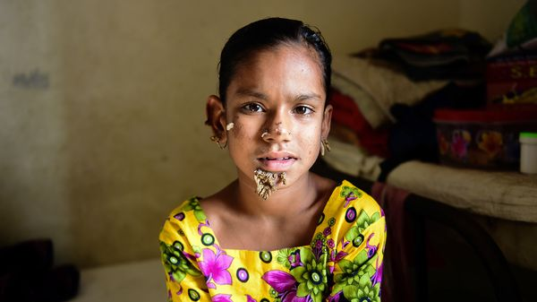 Sahana Khatun tuvo manchas en la piel desde los dos años, y las verrugas se le presentaron a los diez. (AFP)