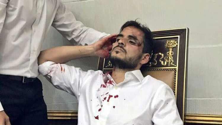 El diputado Armando Armas fue uno de los ocho heridos que dejó el ataque este miércoles