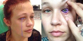 Se tatuó el globo ocular, sufre de dolor y quedó parcialmente ciega