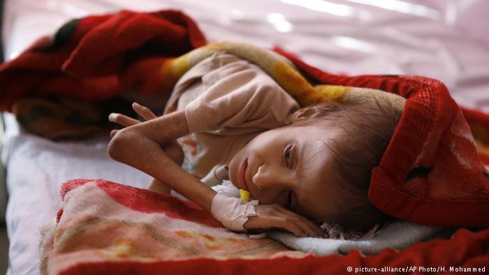 Jemen Kind Unterernährung (picture-alliance/AP Photo/H. Mohammed)