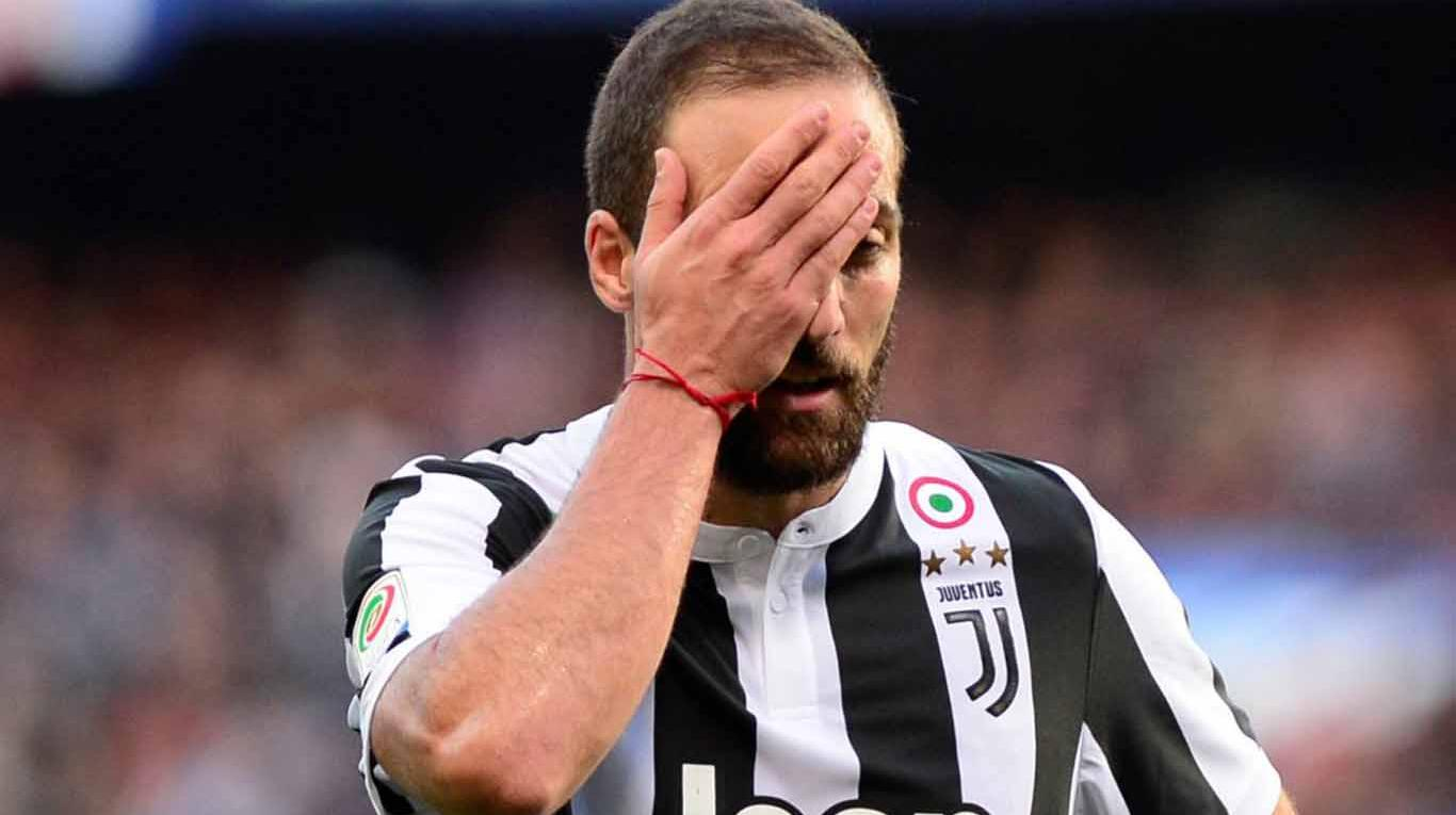 Image result for higuain fractura mano